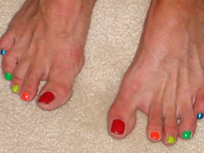 Lesley's toe nails